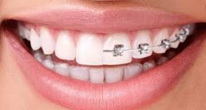 Overview of pediatric orthodontic procedures