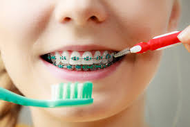 Make a positive smile with orthodontic treatment
