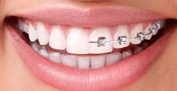 Overview of pediatric orthodontic procedures